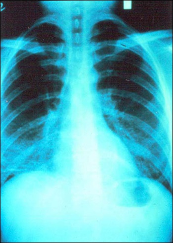 Lung X-ray of patient shows infection with Pneumocystis carinii pneumonia