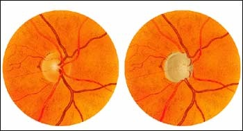 Painting of a normal optic disc and a glaucomatous optic disc