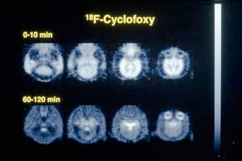 Images showing the effect of cyclofoxy on a baboon brain