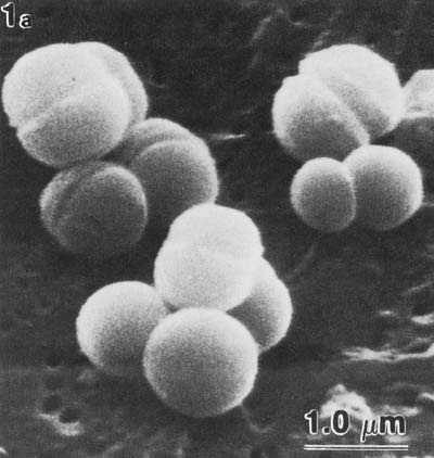 scanning electron micrograph of Methanospaera stadtmaniae, round spheres that almost appear cleaved in half